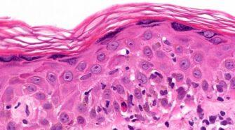 graft versus host disease and CBD